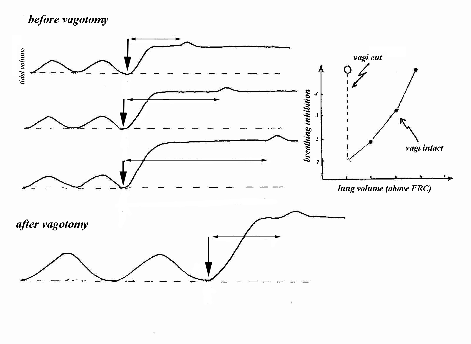 dive reflex pattern of reflexes triggered The cold shock response is a pattern of reflexes driven by cutaneous   individually, the diving response triggers a parasympathetically driven.