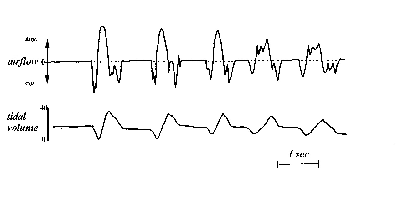 Resting Breathing Pattern And Its Peripheral Modulation Inhalation Exhalation Diagram Of Activity Records Respiratory Airflow Tidal Volume Vt Inspiration Upward Note The Interruptions Expiratory Flow During Expiration